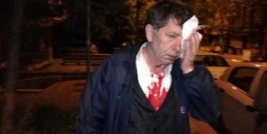 Yavuz Selim Demirağ saldırıya uğradı